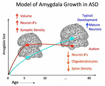 Why Autism Is Different In Brains Of >> How Does The Autism Brain Change Through The Lifespan Interactive