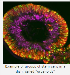 photo of organoid stem cells